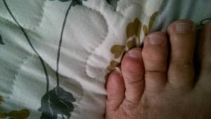 lumpy toes